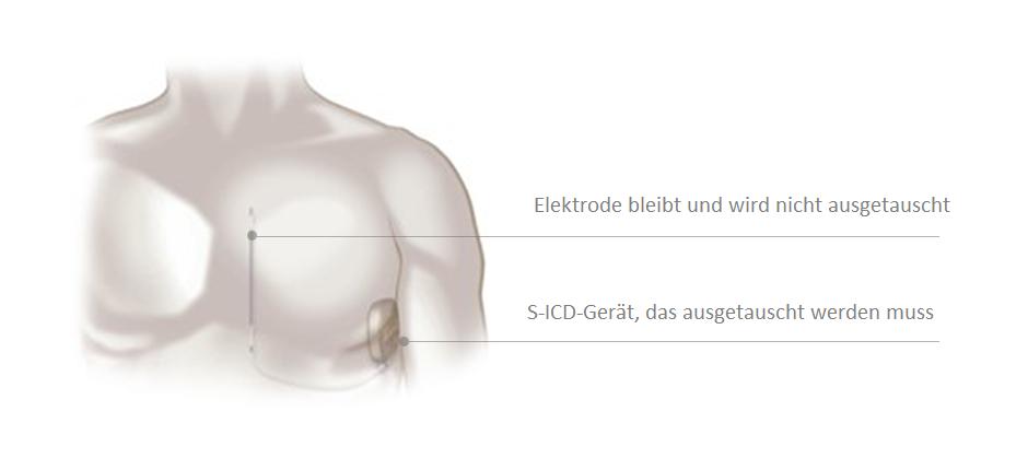 S-ICD-Austausch erforderlich