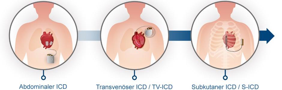 Weiterentwicklung des ICD-Systems zum S-ICD